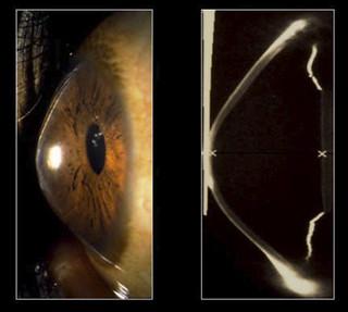 El queratocono Normalmente no se aprecia a simple vista, a no ser que esté muy avanzado y provoque cicatrices blanquecinas en la propia córnea.