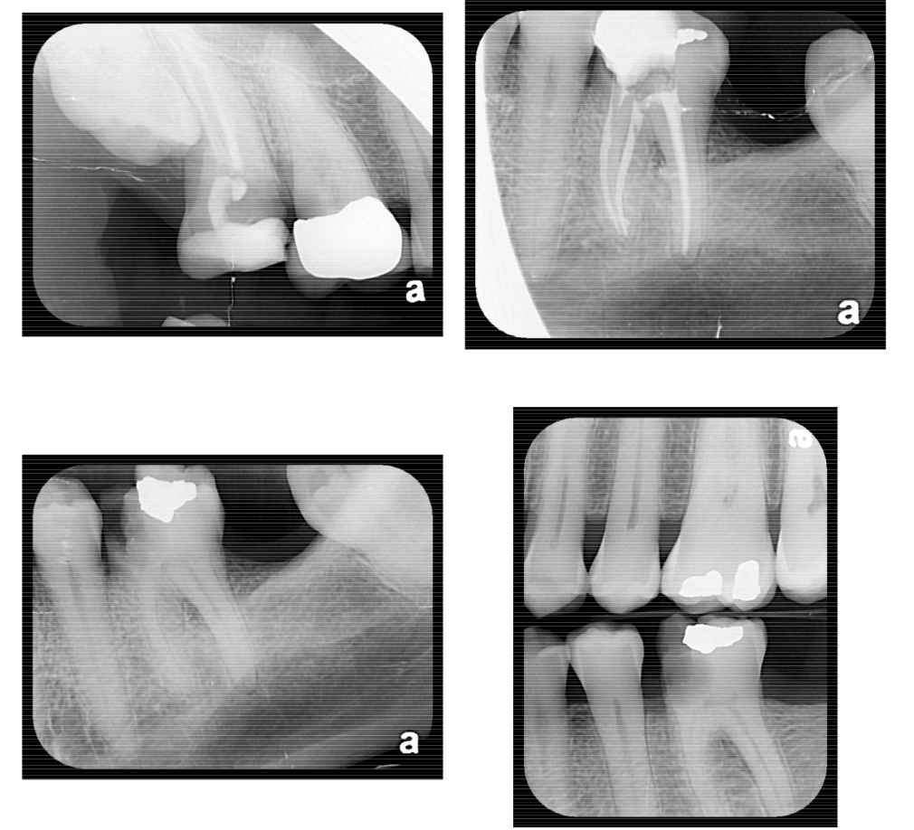 tooth-xrays-2-28-013