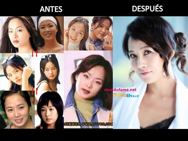 KOREAN ACTRESS BEFORE AND AFTER PLASTIC SURGERY ACTRICES COREANAS CON CIRUGIA PLASTICA (8)