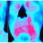 Thermal imaging for head and neck cancers