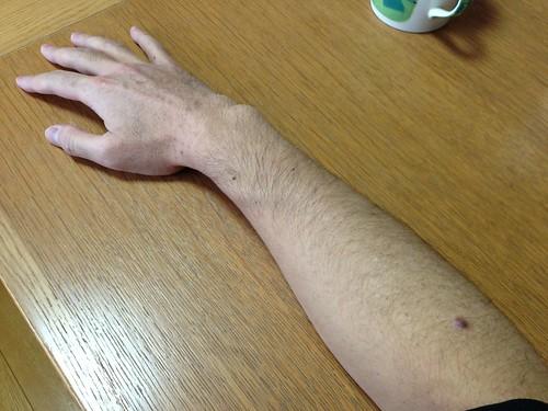 皮膚線維腫の日帰り手術