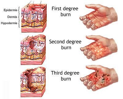 Natural Treatment For First Degree Burn