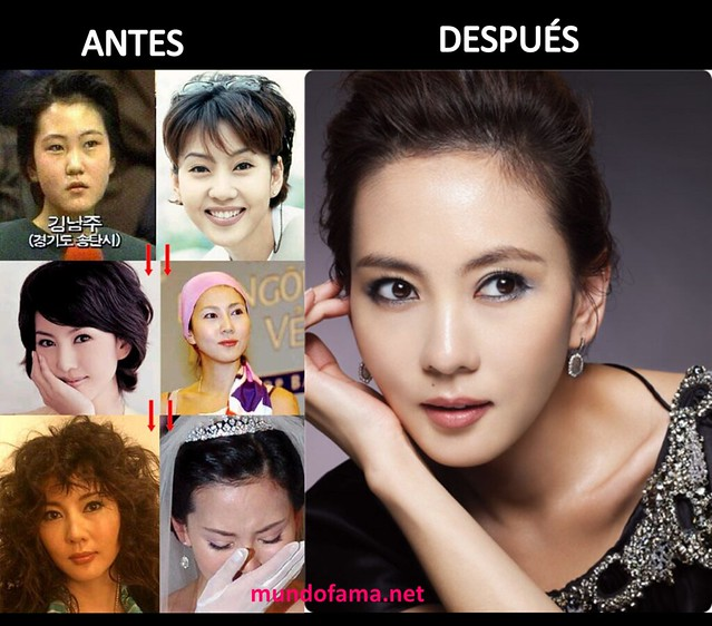 KOREAN ACTRESS BEFORE AND AFTER PLASTIC SURGERY ACTRICES COREANAS CON CIRUGIA PLASTICA (4)