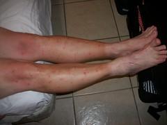 Sand Fleas/Flies - The Belize Forums