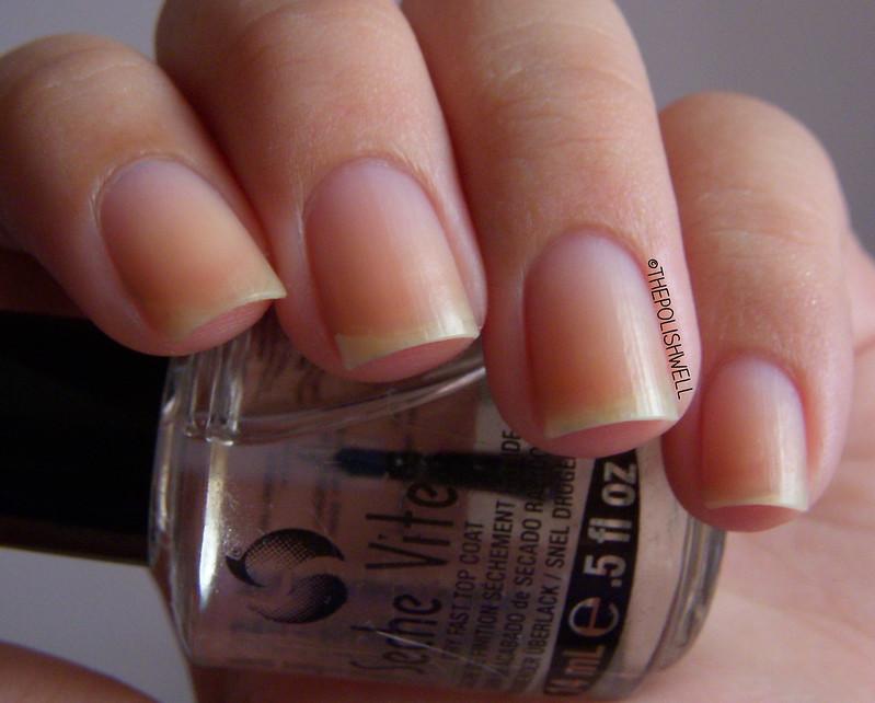 nail-whitening-before