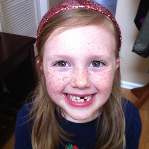 Must have been a rough play date today. She came home without a front tooth!!!