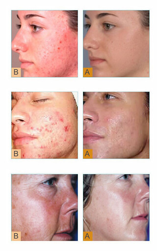 Silkpeel Results before and after