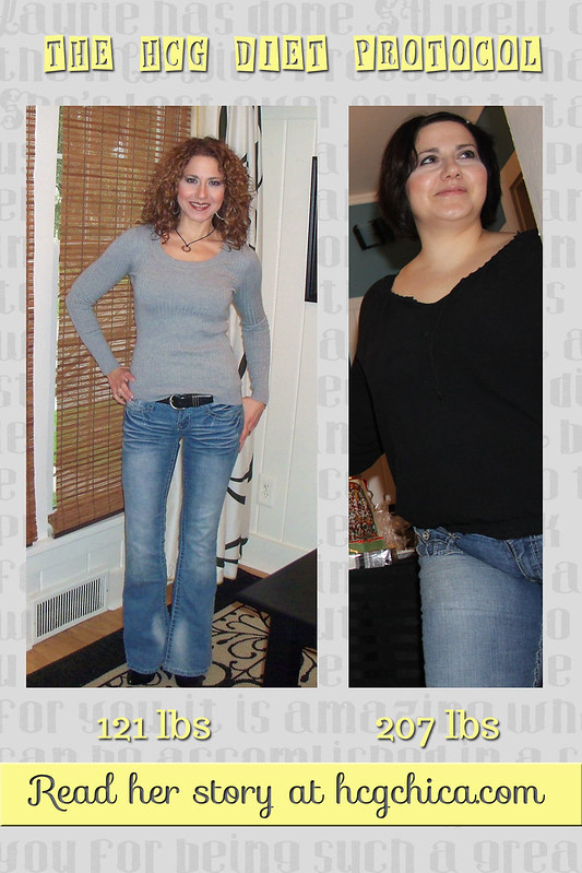 My Weight Loss Story { Before & After Photos }