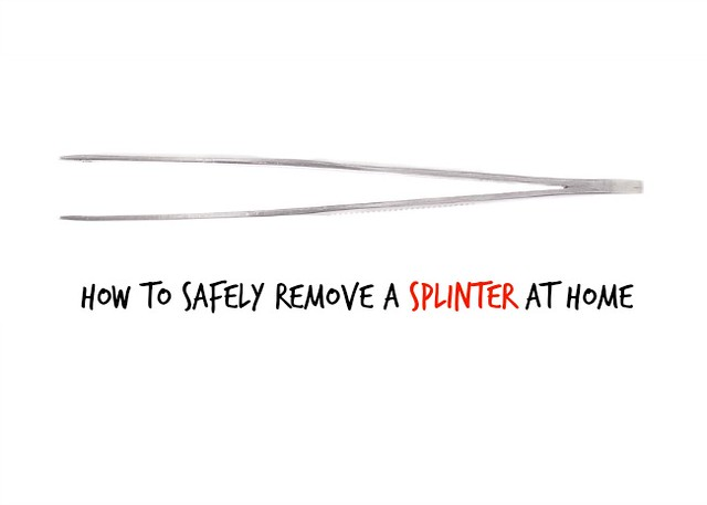 How to Safely Remove a Splinter