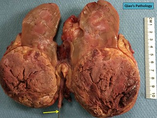 Qiao's Pathology: Renal Cell Carcinoma