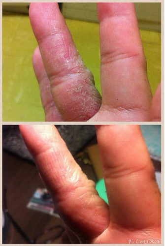 before and after results of fingers using DNA Miracles Soothing Ointment