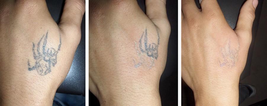 Sydney tattoo removal for Tattoo removal sydney