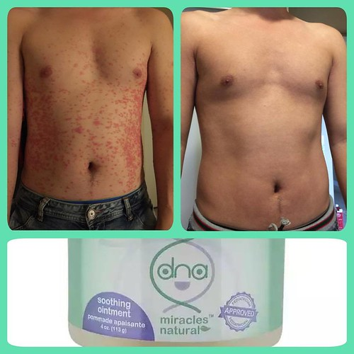 before and after results of chest using DNA Miracles Soothing Ointment