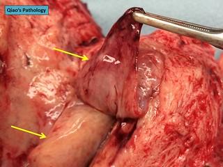 Qiao's Pathology: Benign Endometrial Polyps