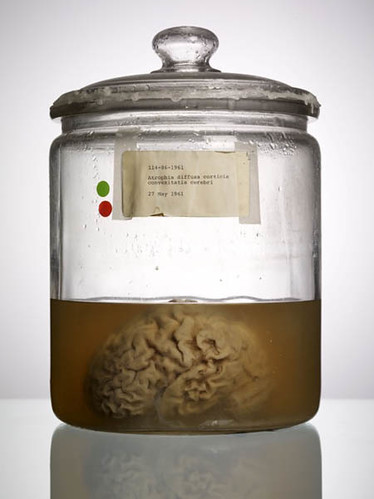 """Malformed Study no. 20, Atrophia diffusa corticis convexitatis cerebri, 27 May 1961. By Adam Voorhes for his book, """"Malformed: Forgotten Brains of the Texas State Mental Hospital."""""""