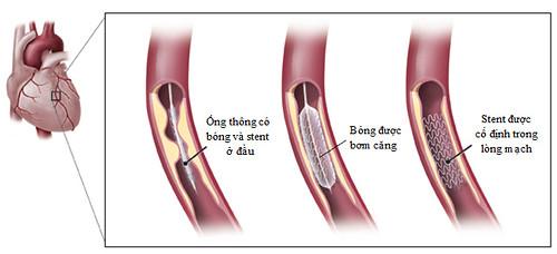 Đặt stent trong điều trị tắc hẹp động mạch vành (1)