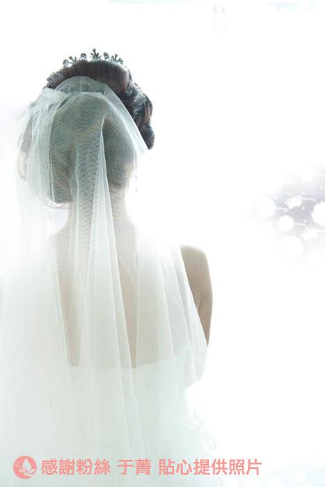 高雄醫美推薦_高雄美妍醫美_新嫁娘的婚禮記事 (19)