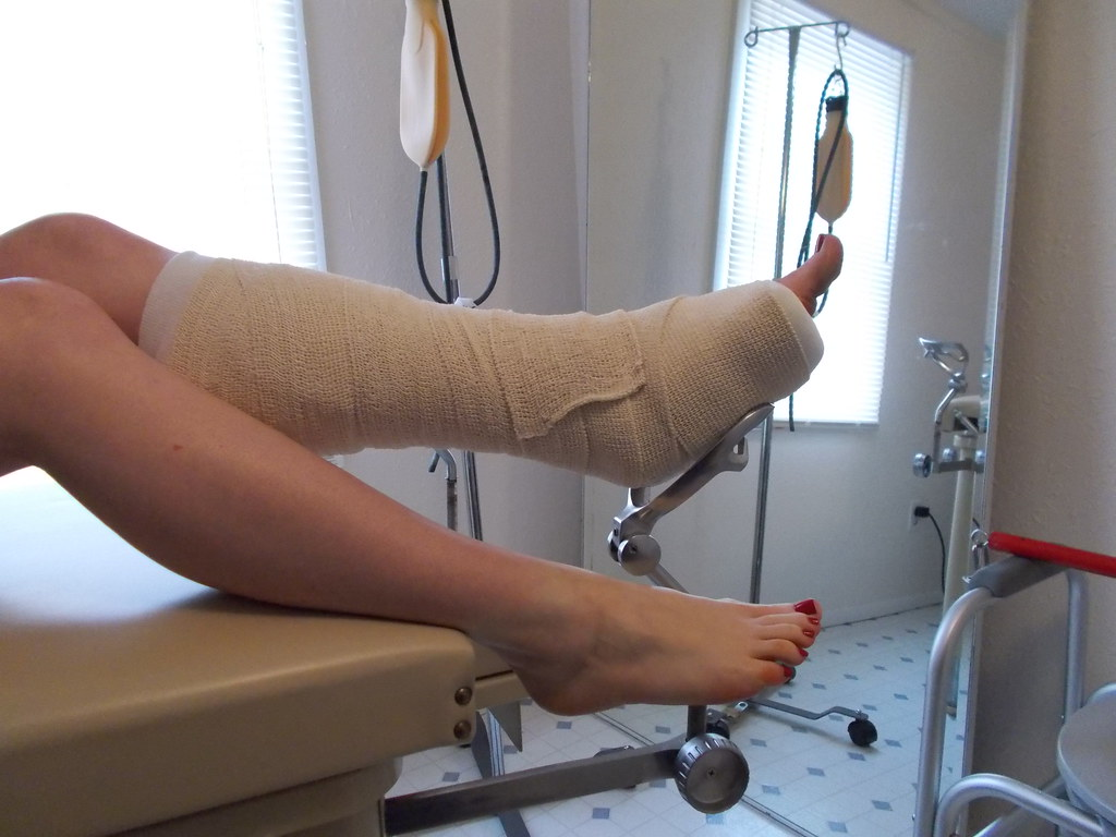 Usually your doctor will diagnose the ankle fracture after ordering an X ray