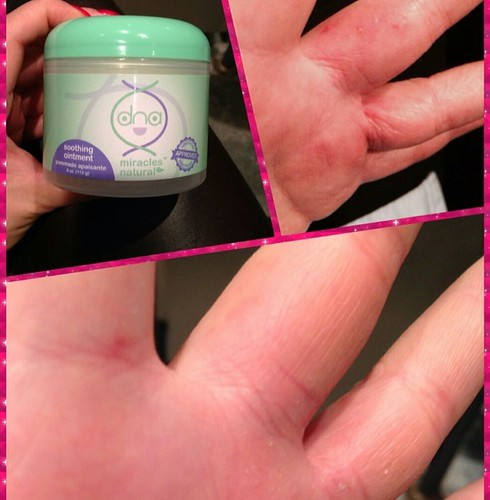 before and after results of hands using DNA Miracles Soothing Ointment