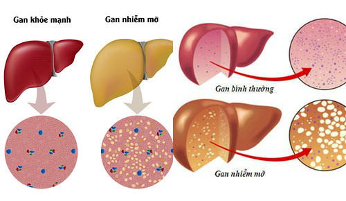 Phát hiện mới trong điều trị gan nhiễm mỡ