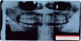 X-ray 1998