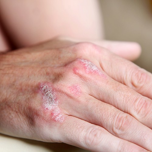 The FDA approved a new treatment for plaque psoriasis after Joel Schlessinger MD's participation in a successful clinical study
