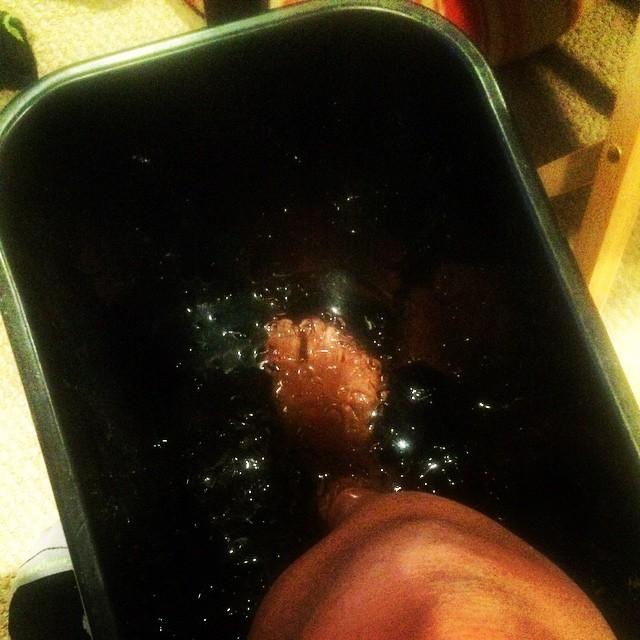 Icing my foot! Stupid tendonitis. #runnerprobs #runchat