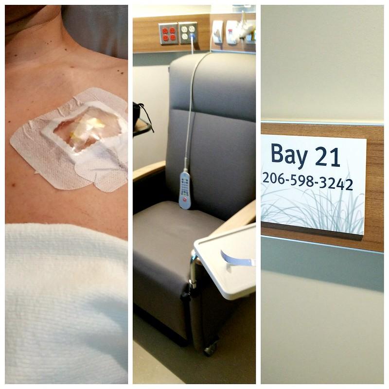 Chemo: Day 84