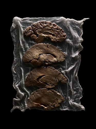 """Malformed Study no. 500, Teaching Brain. By Adam Voorhes for his book, """"Malformed: Forgotten Brains of the Texas State Mental Hospital."""""""