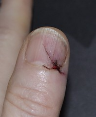 Day 3 - Axed finger