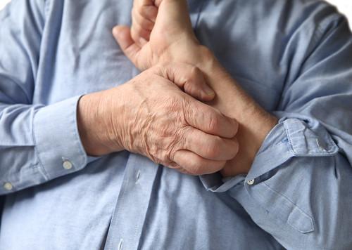 Joel Schlessinger MD advises on how to avoid skin irritation