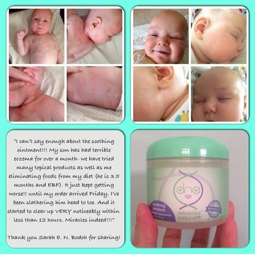 before and after results of baby using DNA Miracles Soothing Ointment