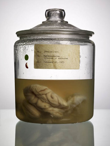 """Malformed Study no. 255, Hydrocephalus internus et externus, February 27, 1975. By Adam Voorhes for his book, """"Malformed: Forgotten Brains of the Texas State Mental Hospital."""""""