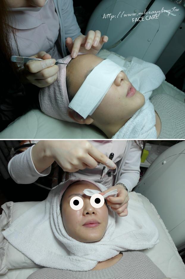 粉餅雷射粉餅光纖粉餅雷射皮秒雷射黑眼圈淡斑淨膚雷射痘疤毛孔粗大美白