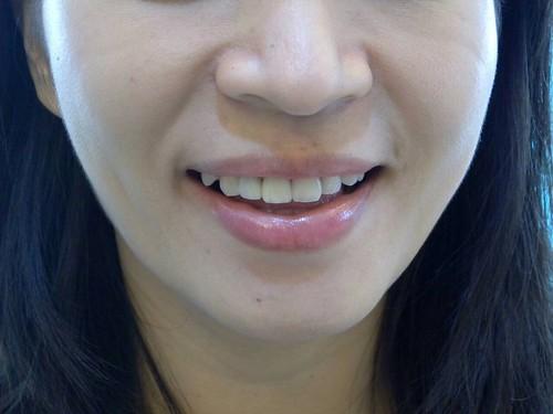 台中豐美牙醫水晶瓷牙打造我的笑容黃金比例 (7)