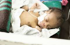 Baby Mihiret Tesfaye, female, being treated in neonatal intensive care unit inside Yekatit 12 Hospital Medical College. Being critically ill, she suffers from respiratory distress, secondary early onset neonatal sepsis as well as other infections.