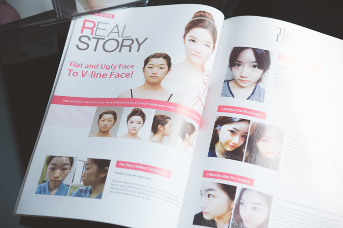 Olga choi fashion blogger myblondegal South Korea The Line Clinic Plastic Surgery Seoul Aesthetic surgery Medical Tourism-07667