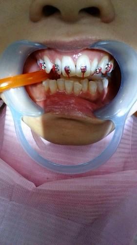 【矯正日誌】高雄牙齒矯正推薦,去給西河牙醫診所林書妡醫師裝戴蒙矯正器囉_紅線是裝矯正器時測量牙齒距離用的輔助軟紅線,用完就拿掉了