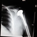 Small photo of Full Shoulder Replacement X-ray