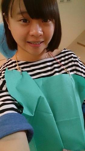 【矯正日誌】高雄牙齒矯正推薦,去給西河牙醫診所林書妡醫師裝戴蒙矯正器囉_一年左右
