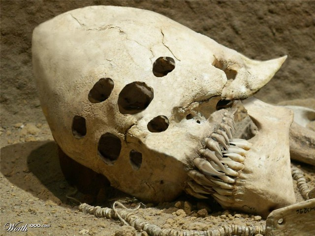 The 5 Strangest Human Skulls Ever Discovered