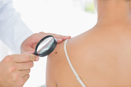 Dr. Joel Schlessinger discusses questions to ask your dermatologist