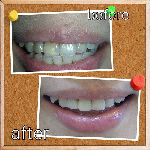 台中豐美牙醫水晶瓷牙打造我的笑容黃金比例 (5)