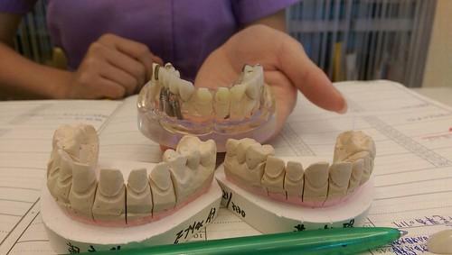 台中豐美牙醫水晶瓷牙打造我的笑容黃金比例 (1)