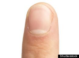 White Spot Under Nail