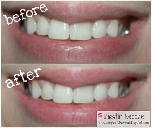 Home Teeth Whitening Baking Soda