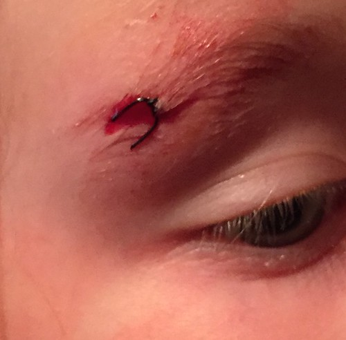 Nora's cut eyebrow stitched