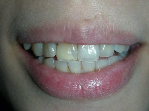 台中豐美牙醫水晶瓷牙打造我的笑容黃金比例 (3)