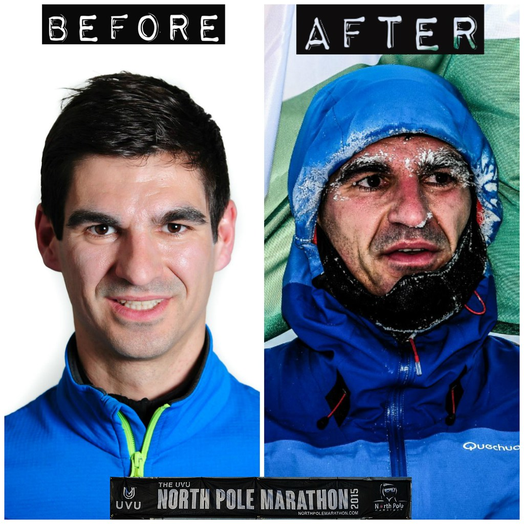 befor-after 1-1