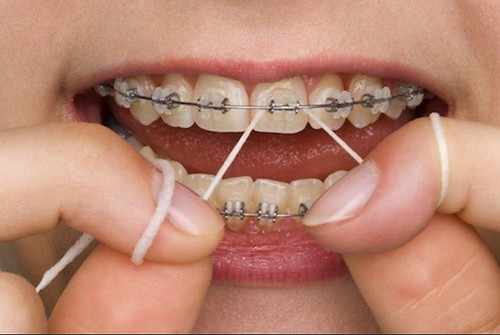 Caring for Dental Braces